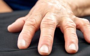 6 Natural Rheumatoid Arthritis Treatments for Flare-Ups