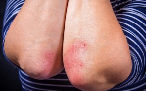 All About Psoriasis: From Plaque Psoriasis Treatments to Pustular
