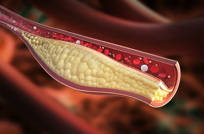lower ldl cholesterol, high ldl cholesterol treatment, lowering ldl cholesterol