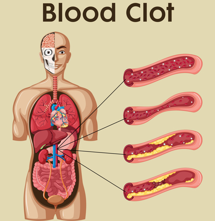 blood clot treatment, blood clot treatments