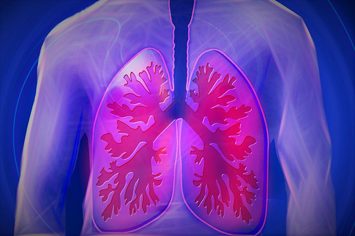 copd treatment, copd medication, copd treatment plan, copd drug
